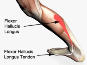 Flexor Hallusis Longus Tenosynovitis