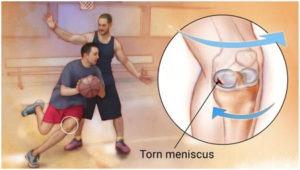 Meniscus Tear1