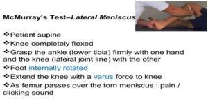 Meniscus Tear5