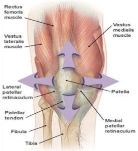 Patellofemoral Pain Syndrome1