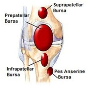 Bursitis around Knee