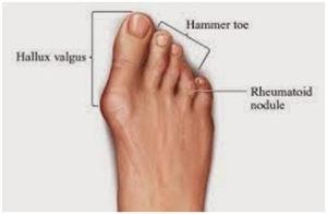 Ra Foot