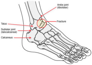 Stress Fracture of Talus